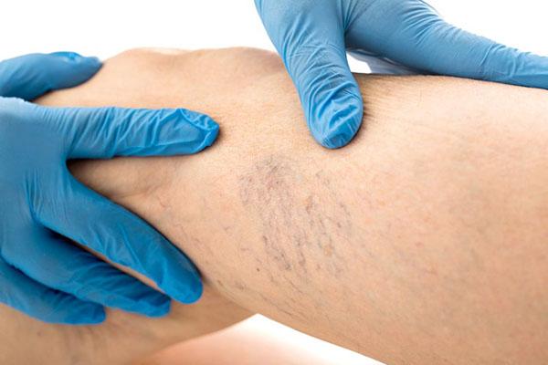 Tratamiento de Varices en Lima